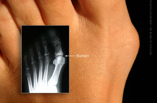 feet with bunions